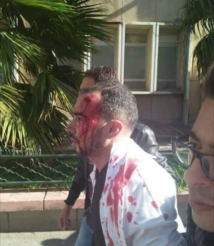 الجزائر: جرحى في اشتباكات بين الأمن والأطباء