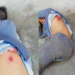 قتيل السيجومي: المحامون الشبان يتّهمون السلط المعنية ويطالبون النيابة بالتدخّل