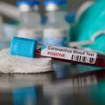 وزارة الصحة: تسجيل إصابة جديدة وافدة بكورونا