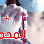 إدارة الصحّة ببن عروس: إصابة جديدة محليّة بكورونا بالمحمديّة